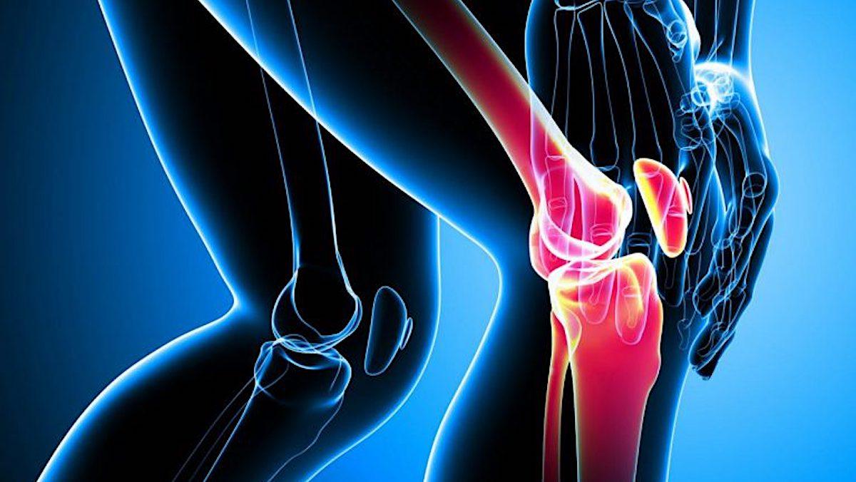 Dolor de Rodilla e Inflamación